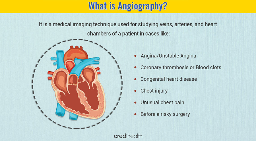 Coronary angiography test