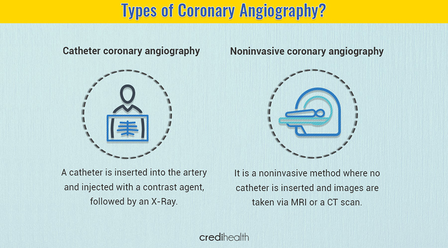 Coronary angiography test 2