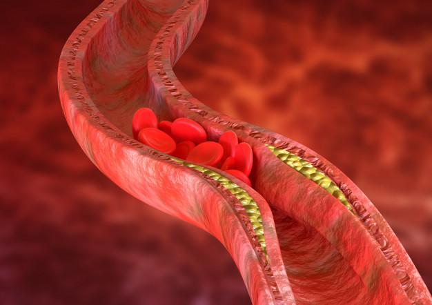 Coronary angioplasty